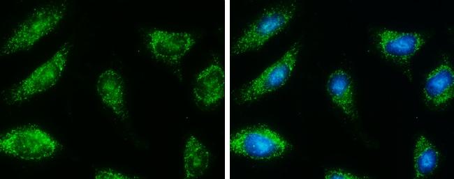 HSD17B4 Antibody in Immunocytochemistry (ICC)