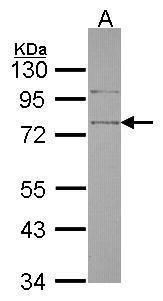 SRPX Antibody in Western Blot (WB)
