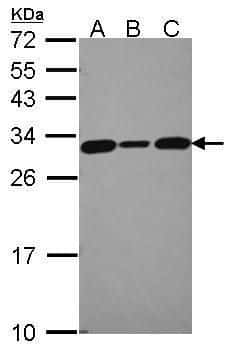 Calcyclin Antibody in Western Blot (WB)