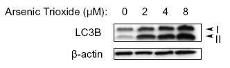 LC3B Antibody in Western Blot (WB)