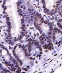 Nkx6.1 Antibody in Immunohistochemistry (IHC)