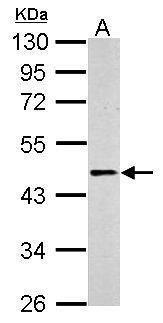 beta-2 Adrenergic Receptor Antibody in Western Blot (WB)