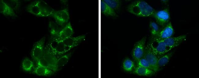 APOE Antibody in Immunocytochemistry (ICC/IF)