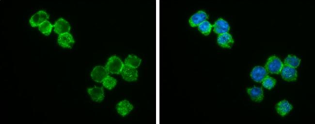 Bcl-2 Antibody in Immunocytochemistry (ICC)