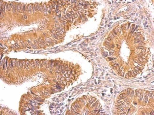 TIP30 Antibody in Immunohistochemistry (Paraffin) (IHC (P))