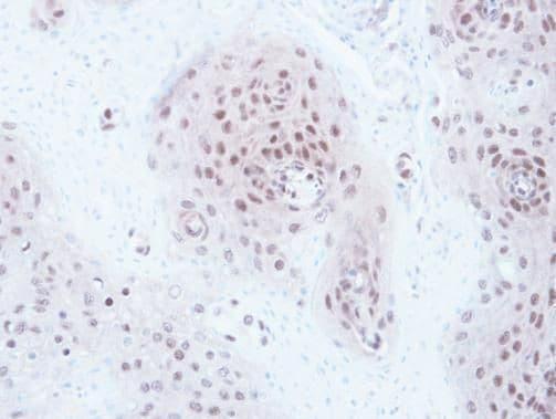 GPS1 Antibody in Immunohistochemistry (Paraffin) (IHC (P))