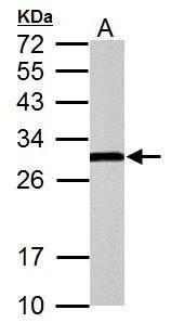 ERAB Antibody in Western Blot (WB)