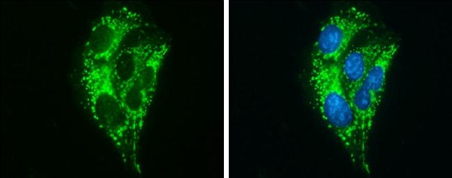 ABAT Antibody in Immunocytochemistry (ICC)