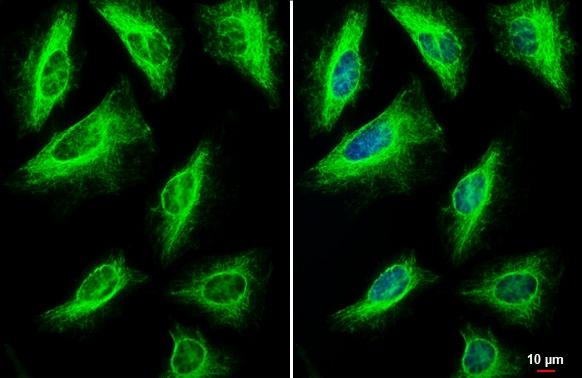 Vimentin Antibody in Immunocytochemistry (ICC)