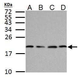 SOD1 Antibody in Western Blot (WB)