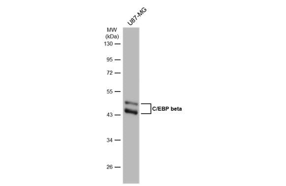 C/EBP beta Antibody in Western Blot (WB)