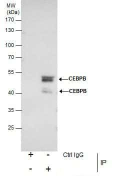 C/EBP beta Antibody in Immunoprecipitation (IP)