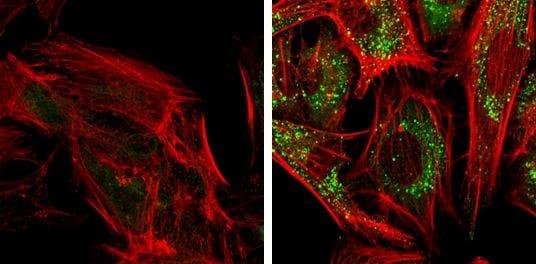 SQSTM1 Antibody in Immunofluorescence (IF)