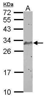 SCP3 Antibody in Western Blot (WB)