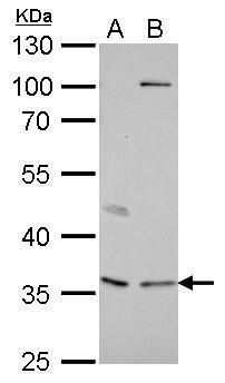 Decorin Antibody in Western Blot (WB)
