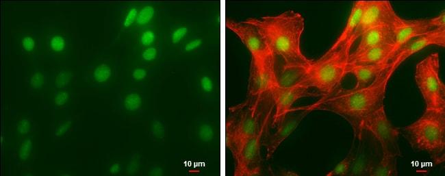 HMGB1 Antibody in Immunocytochemistry (ICC)