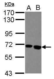 Butyrylcholinesterase Antibody in Western Blot (WB)