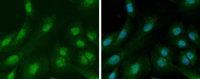Ataxin 3 Antibody in Immunocytochemistry (ICC)