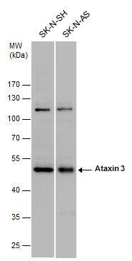 Ataxin 3 Antibody in Western Blot (WB)