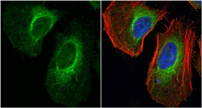 LDHA Antibody in Immunocytochemistry (ICC/IF)