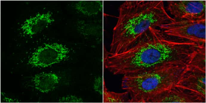 ALDH2 Antibody in Immunocytochemistry (ICC)
