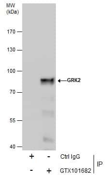 GRK2 Antibody in Immunoprecipitation (IP)