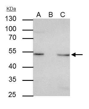 ILK Antibody in Immunoprecipitation (IP)