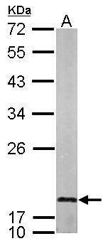 LMO1 Antibody in Western Blot (WB)