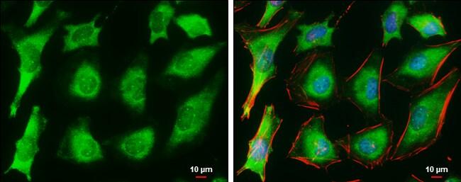 Ferritin Heavy Chain Antibody in Immunocytochemistry (ICC)