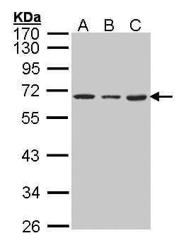 hnRNP K Antibody in Western Blot (WB)