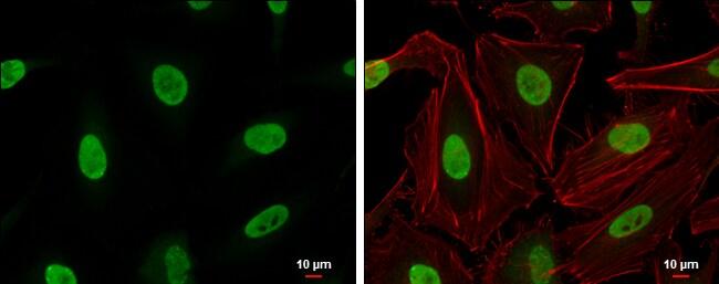 Ku70 Antibody in Immunocytochemistry (ICC)