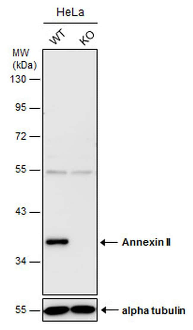 Annexin A2 Antibody in KnockOut