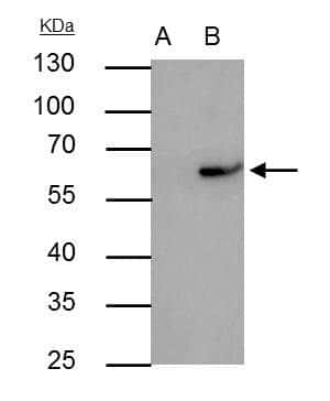RAP1 Antibody in Immunoprecipitation (IP)