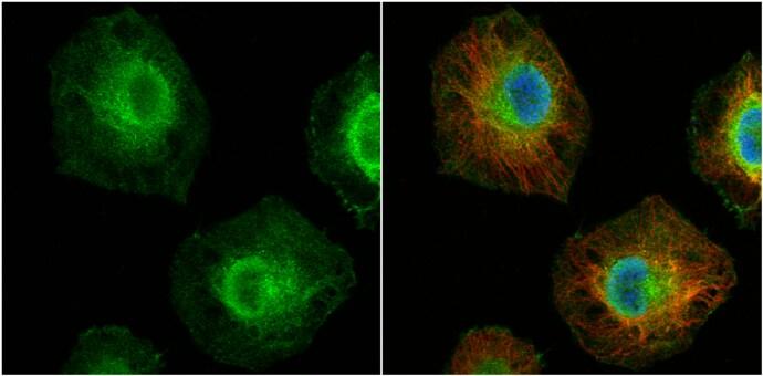 MCL-1 Antibody in Immunocytochemistry (ICC)