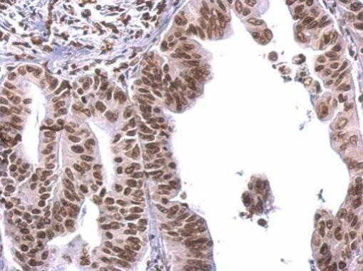 COBRA1 Antibody in Immunohistochemistry (Paraffin) (IHC (P))