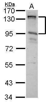CIZ1 Antibody in Western Blot (WB)