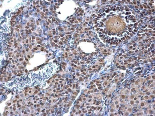 TRIM28 Antibody in Immunohistochemistry (Paraffin) (IHC (P))