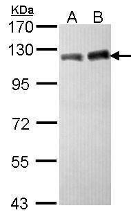 TRIM28 Antibody in Western Blot (WB)