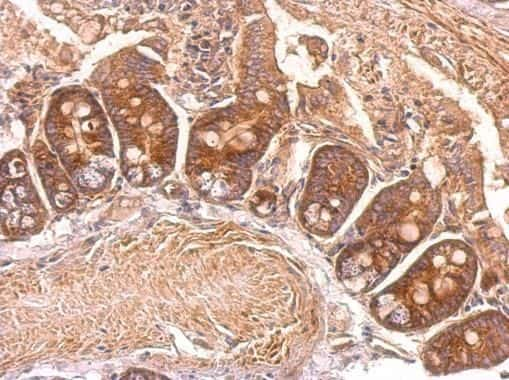 EEF2 Antibody in Immunohistochemistry (Paraffin) (IHC (P))