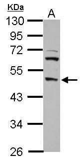 DP2 Antibody in Western Blot (WB)