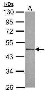 ZIPK Antibody in Western Blot (WB)