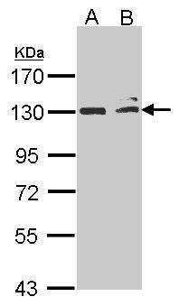 NIK Antibody in Western Blot (WB)