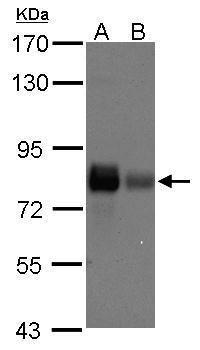 Caldesmon Antibody in Western Blot (WB)