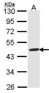 FAH Antibody in Western Blot (WB)