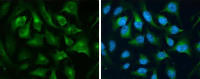 Transferrin Receptor Antibody in Immunofluorescence (IF)