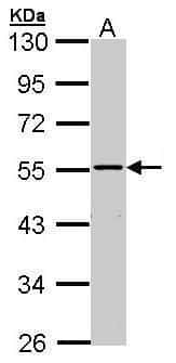 TPL2 Antibody in Western Blot (WB)