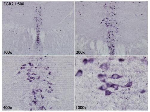 EGR2 Antibody in Immunohistochemistry (Frozen) (IHC (F))