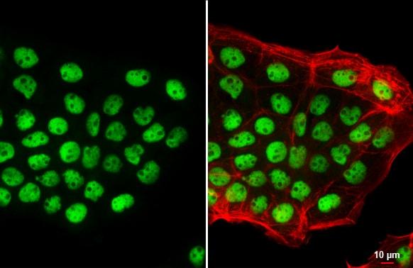 p53 Antibody in Immunocytochemistry (ICC)