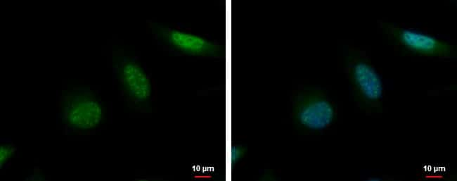 MCAK Antibody in Immunofluorescence (IF)