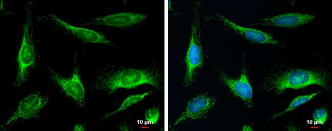 MUTYH Antibody in Immunocytochemistry (ICC)